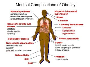 MedicalComplicationsofObesity
