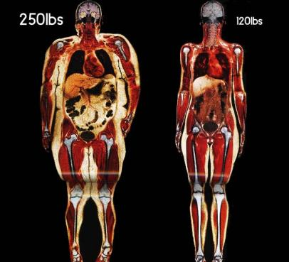 body-fat-scan-obese-normal
